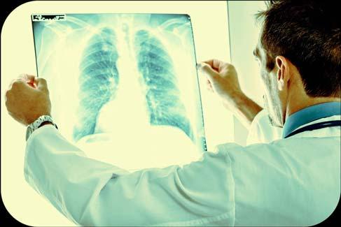 Exame de Sangue detecta Enfisema Pulmonar